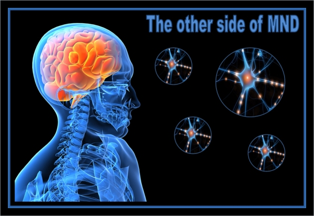 The other side of motor neurone disease living with for What causes motor neuron disease mnd